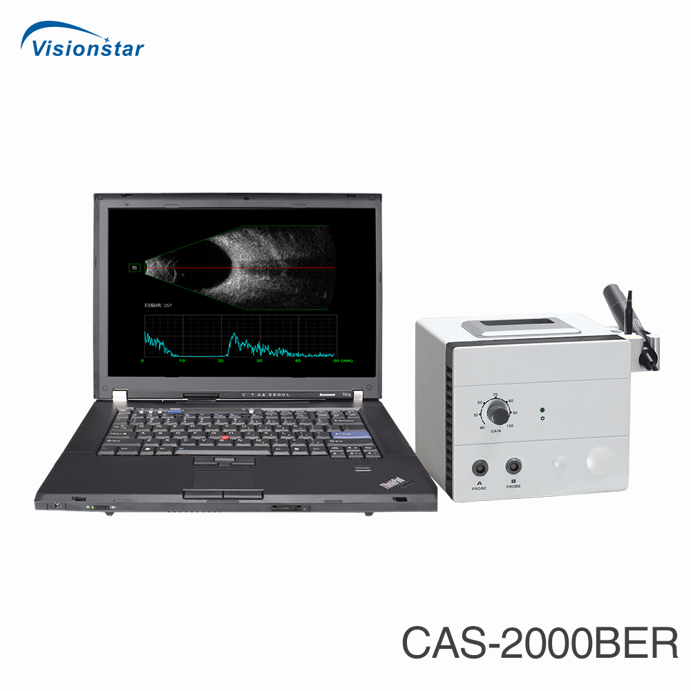 CAS-2000BER Ophthalmic AB Scan