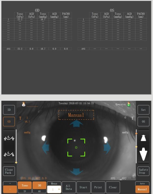 NCT-100 Full Auto Non-contact Tonometer