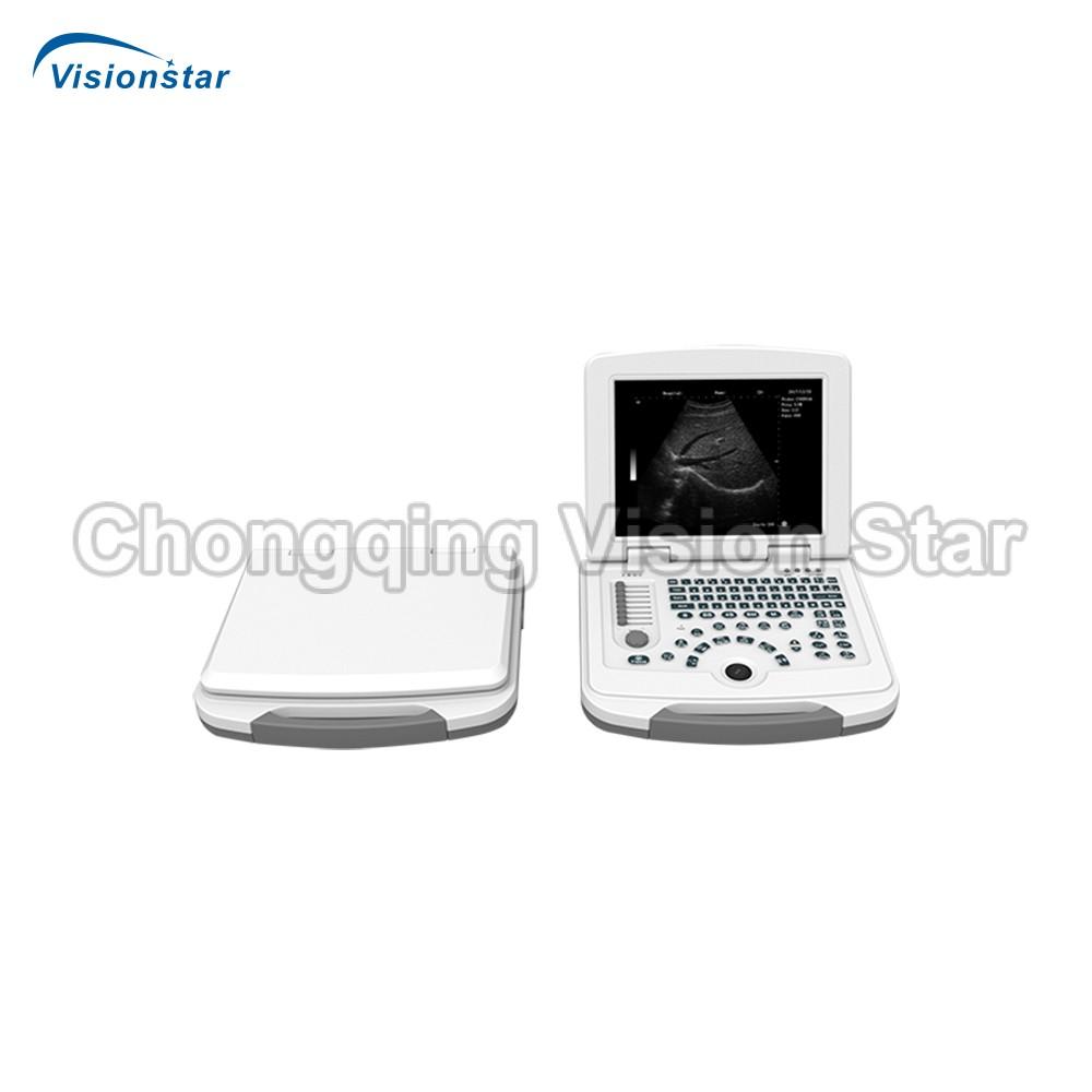 DW-500 B Mode Ultrasound scanner