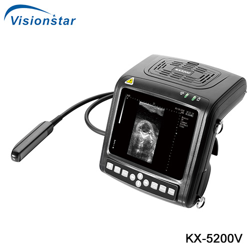 KX-5200V B Mode Veterinary Ultrasound Scanner